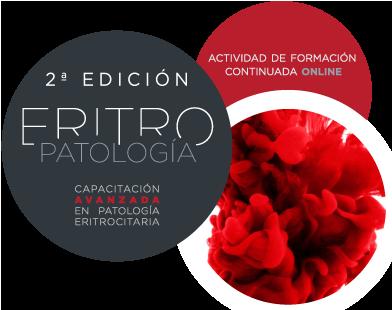 Curso Online CAPACITACIÓN AVANZADA EN PATOLOGÍA ERITROCITARIA, 2ª Edición